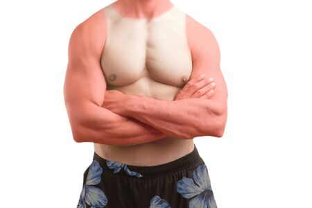 Fit man standing shirtless with his arms crossed with a sunburn, isolated photo