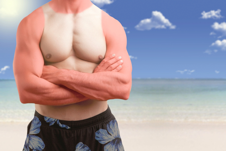 Fit man standing shirtless with his arms crossed in a beach with a sunburn photo