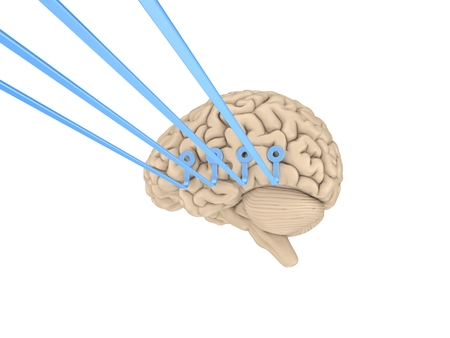 Human brain with a wires attached to it. Stock Photo