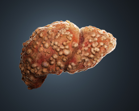 3d rendered cirrotic liver. Stock Photo