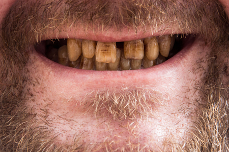 smokers teeth, the smokers close-up smile, the dentists dream