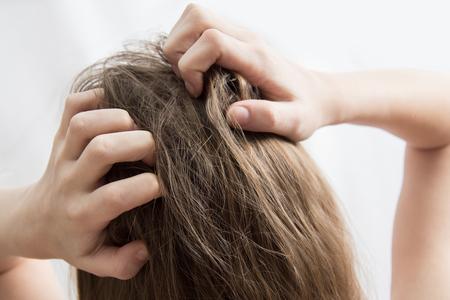 Zbliżenie dłoni kobiety swędząca skóra głowy, koncepcja pielęgnacji włosów Zdjęcie Seryjne