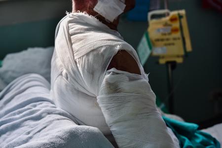 Patiënt met brandwonden in het ziekenhuis.