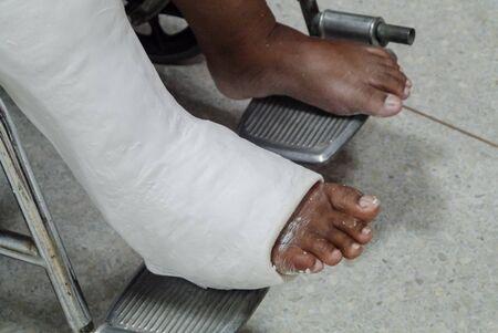 Patients with broken legs and splints for treatment. Archivio Fotografico - 127826516