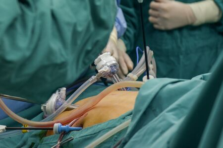 Surgeon during  liver surgery  for patient treatment  in operating room.