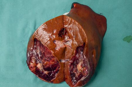 Human liver of liver diseases such as cancer.