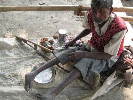 sonepur fair: BEGGAR AT FAIR.SHOT DURING AFTERNOON HOURS ON 02.12.12 AT SONEPUR FAIR, SONEPUR, BIHAR, INDIA.