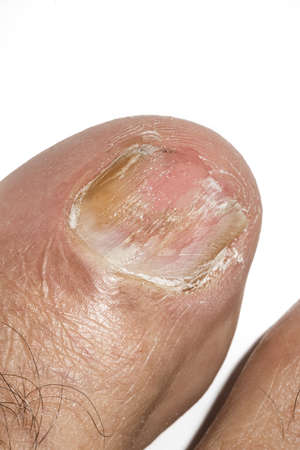 Macro photography of Big toe nail with Onychomycosis, a fungal infection causing yellowing of the toenail.