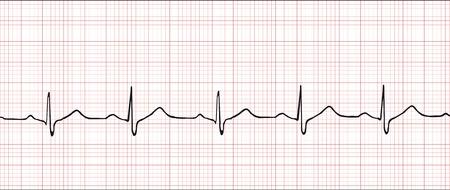 Ilustración de vector de cardiograma electrónico normal