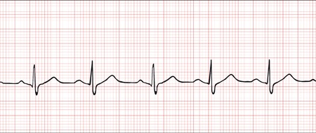 Normal electronic cardiogram vector illustration   Illustration
