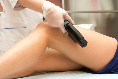 Laser epilation of leg in a modern beauty shop Stock Photo - 8325194
