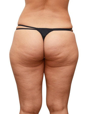 Close up of cellulite skin at woman buttocks on a white