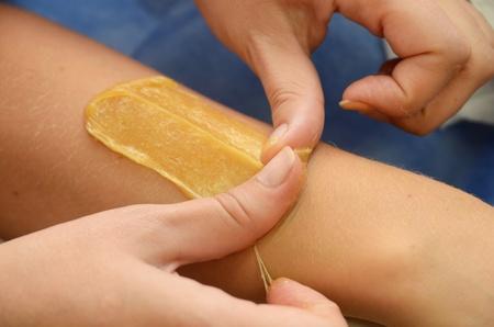 depilacion: Azucarado: depilación con azúcar liquate en las piernas.