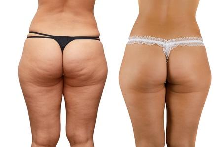Vue rapprochée de la peau de la cellulite aux fesses de la femme sur un fond blanc Banque d'images