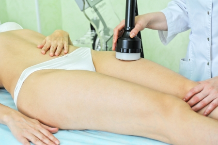 procedure for women hip for cellulite Stock Photo - 13964307