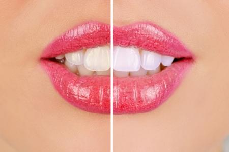 denti, donna, prima e dopo lo sbiancamento