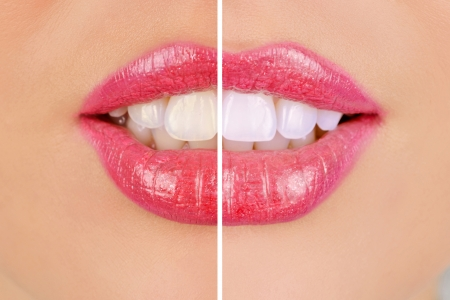woman teeth before and after whitening photo