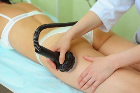 procedura per i glutei delle donne per la cellulite