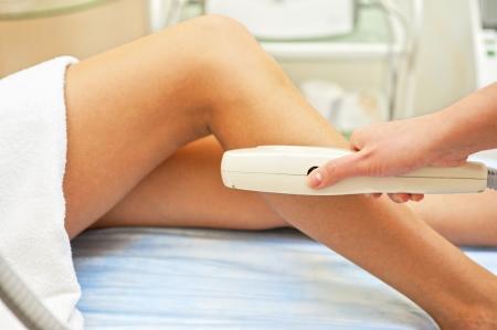 Laser hair removal on ladies legs
