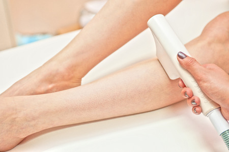 Laser hair removal on ladies legs photo