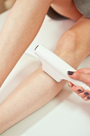 Laser hair removal on ladies legs photo