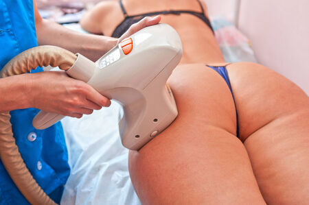 procedure for women hip for cellulite and fat photo