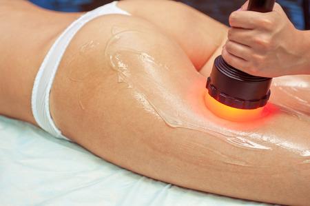 piel humana: procedimiento para las mujeres de la cadera contra la celulitis y la grasa