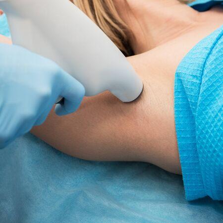 hyperhidrosis: Procedure for armpit against hyperhidrosis