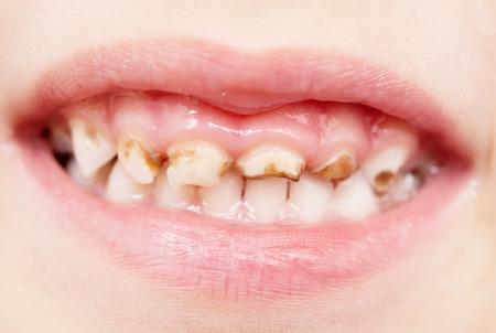 悪い赤ちゃんの歯のクローズ アップ