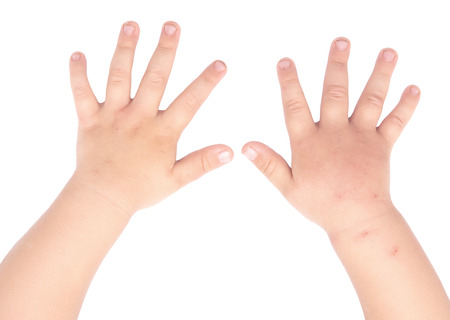 swollen and healthy baby hands isolated on white background