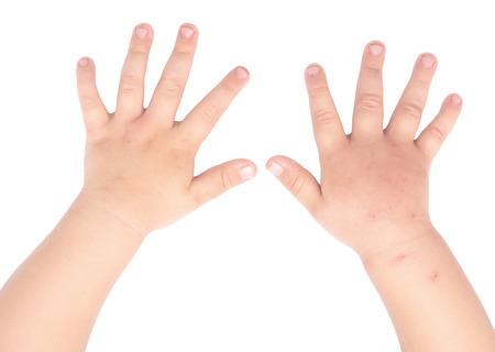 gezwollen en gezonde baby handen geïsoleerd op een witte achtergrond