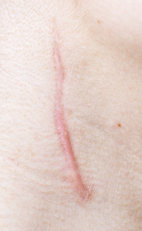 close up of scar on human skin
