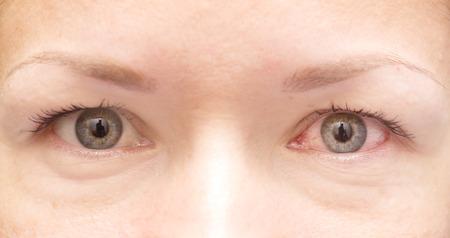 Close-up van gezond en geïrriteerd rood oog