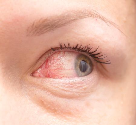 Close up of irritated red bloodshot eye