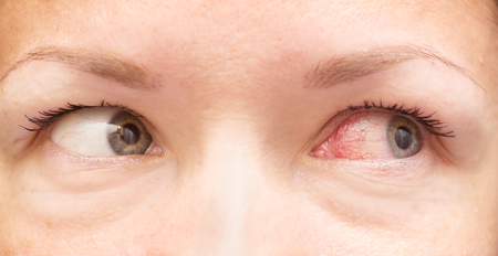 close up of healthy and irritated red eyes Standard-Bild
