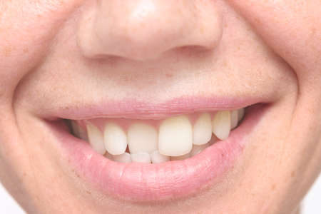 close up shot of crooked teeth Stock Photo