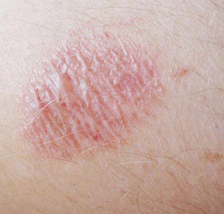 burning skin