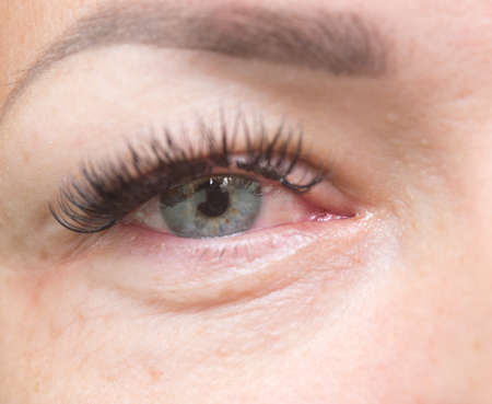 close-up shot van geïrriteerde rode ogen Stockfoto