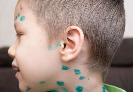 Young boy with chicken pox