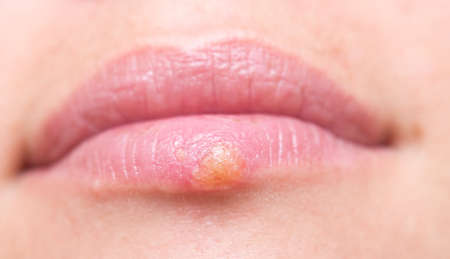 Close up shot of herpes on lips