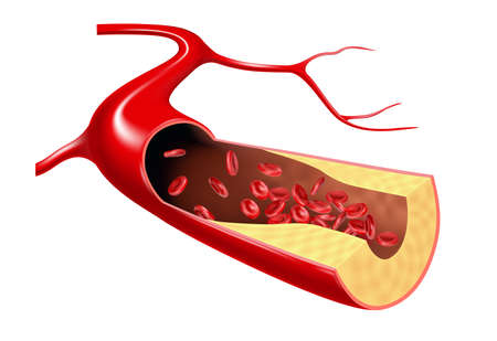 Cholesterol and erythrocyte flow in the vein. Illustration