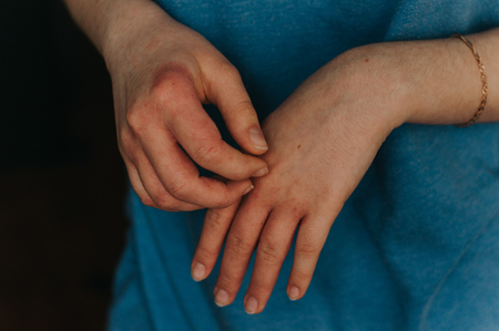 Hand allergy details. Dermatology problem, eczema Фото со стока