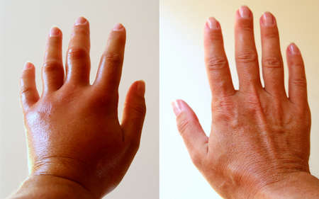 The left arm was severely swollen after a bee sting, which left its sting in the skin with poison.