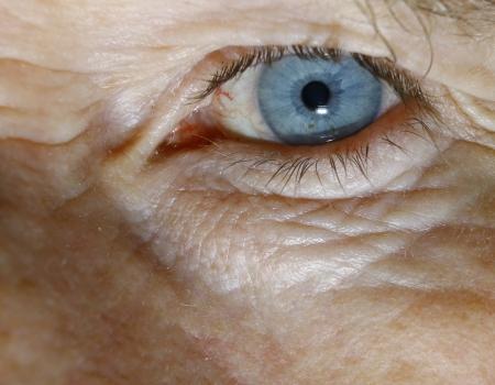 A shot of a bloodshot blue eyeball of a man