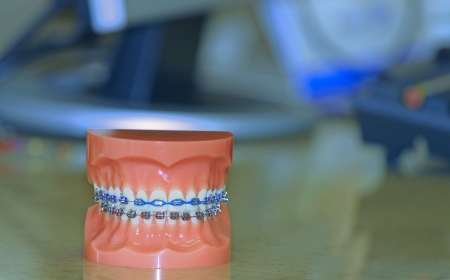 A colorful set of full mouth upper and lower braces on a full mouth teeth mold  Stock Photo