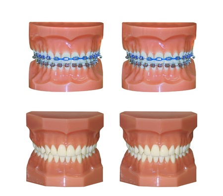Two pairs of dental molds one with braces and one without isolated on white