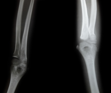 x-ray of a young people arm photo