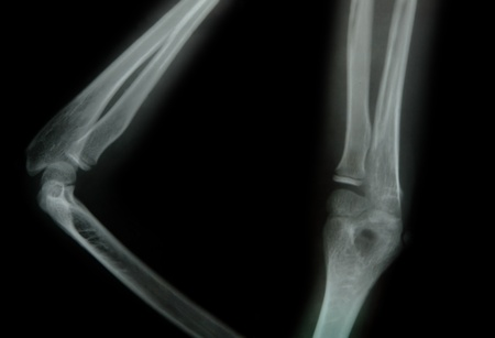 x-ray of a young people arm Stock Photo - 11810282