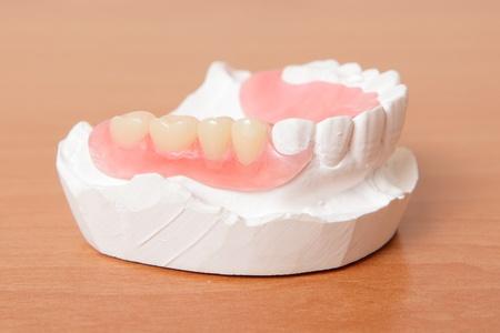 caries dental: prótesis de acrílico (dientes falsos) sobre la mesa