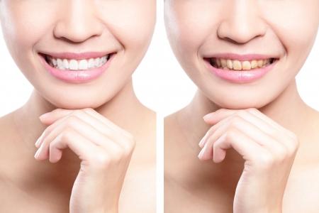 vrouw tanden voor en na het bleken. Aziatische schoonheid model Stockfoto